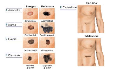 Melanoma | Skin Cancer | MedlinePlus